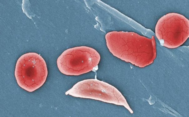 Bild på röda blodkroppar från en patient med sickelcellanemi.