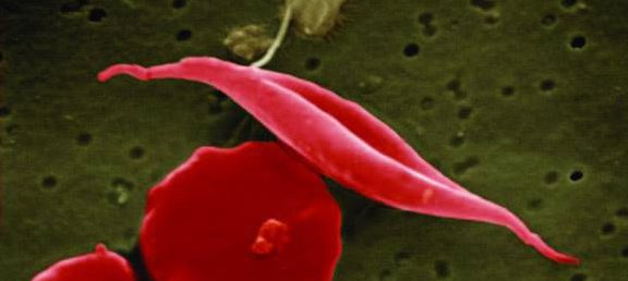 Bild på röda blodkroppar från patient med sickelcellanemi.